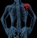 밤만 되면 더 심해지는 통증, 내 어깨 괜찮은건가?