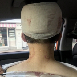 """""""메갈X 실제로 본다""""…공분 산 '이수역 폭행'"""