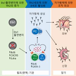 난치성 자가 면역질환 '루푸스' 치료제 개발 청신호