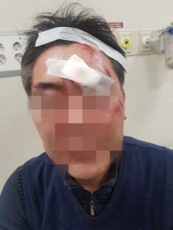 현직 구의원, 식당서 동장 폭행해 현행범으로 체포