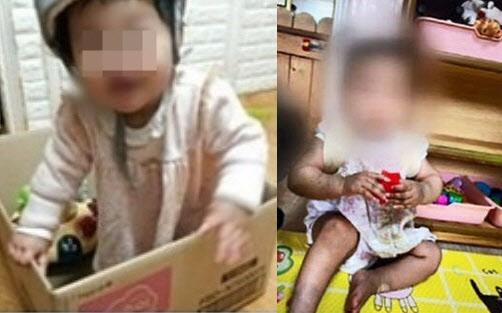 [온라인 들썩]뽀얗던 16개월 아이, 피멍 맺혀 잿빛으로 숨져…국민 분노