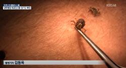 """[온라인 들썩]""""물리면 20% 사망""""…백신 없는 '살인 진드기' 공포"""