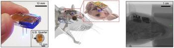무선 장치로 뇌 속 신경회로 정교하게 조절해 치료까지