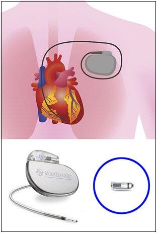전선 없는 무선 심박동기 국내 첫 시술 성공
