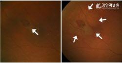 실명 일으키는 망막박리, 10년 동안 2배 가량 급증
